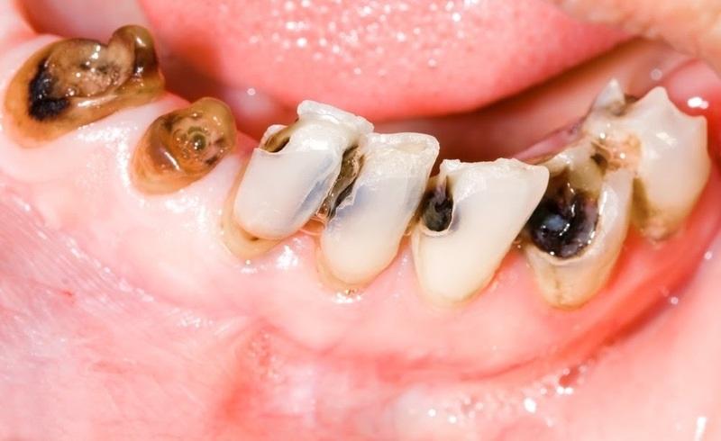 Việc sử dụng loại nước này thường xuyên có thể gây sâu răng