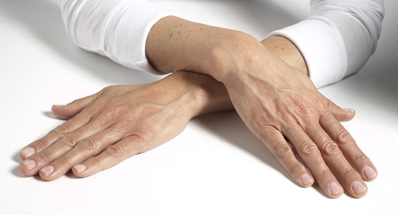 Da tay bị lão hóa do nhiều nguyên nhân khác nhau